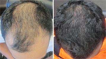 Hair Loss Treatment Result