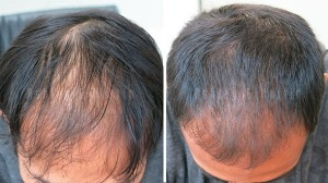 Ashley and Martin Hair Loss case Study