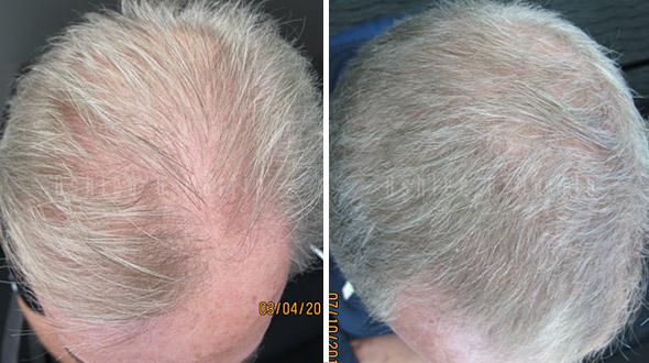 Ashley and Martin Hair Loss Result