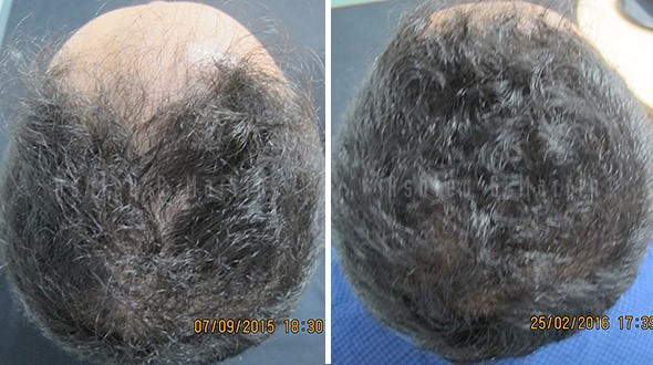 hair-loss-prevention