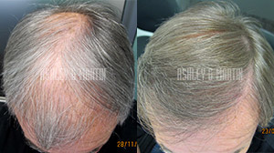 Ashley and Martin Hair Transplant