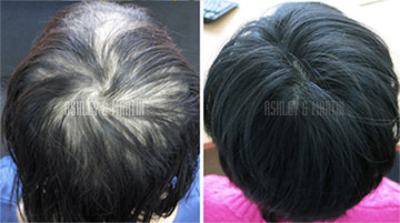 Women's Hair Loss Treatment Result