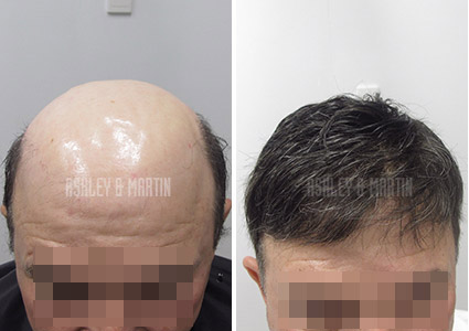 Ashley and Martin Hair Replacement